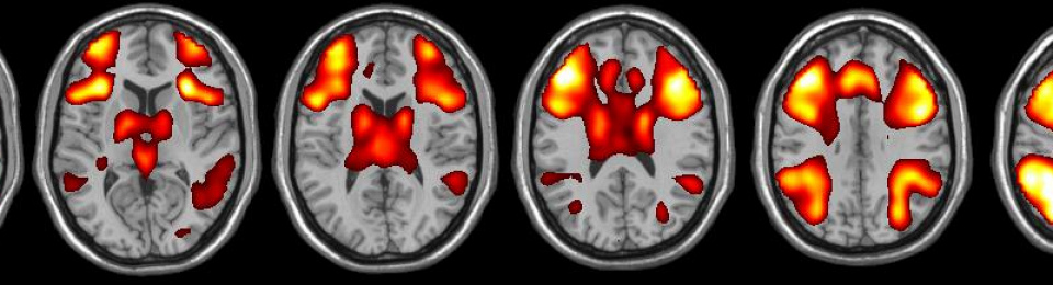 How the use of brain imaging is furthering our understanding of Lupus