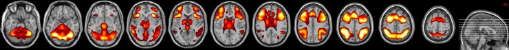 slices_axial
